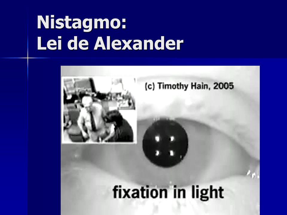Nistagmo: Lei de Alexander