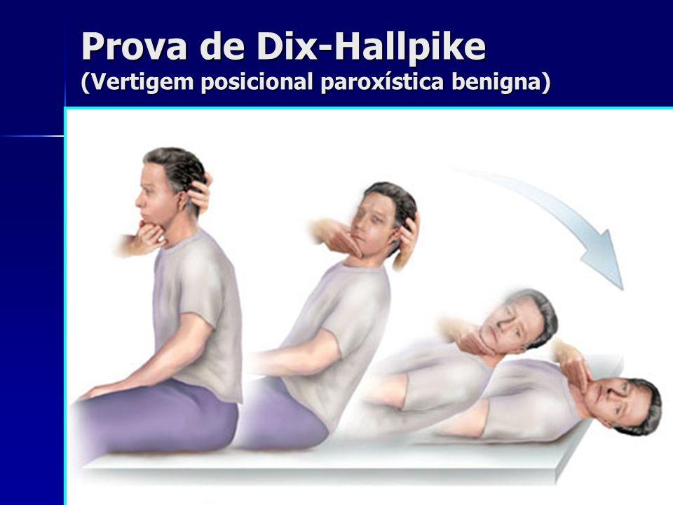 Prova de Dix-Hallpike (Vertigem posicional paroxística benigna)