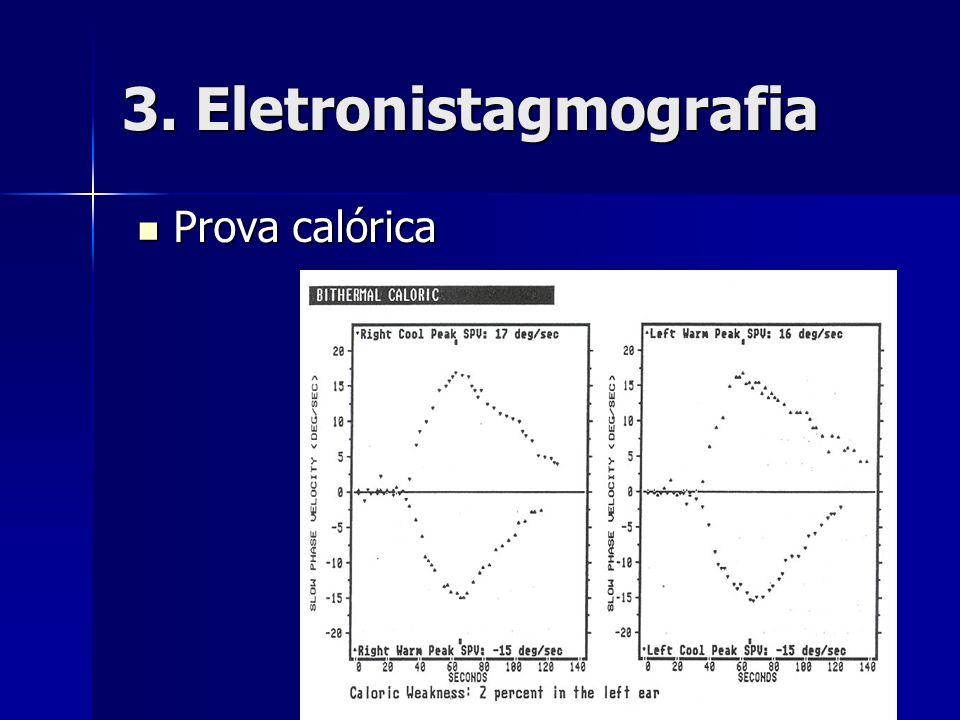 3. Eletronistagmografia