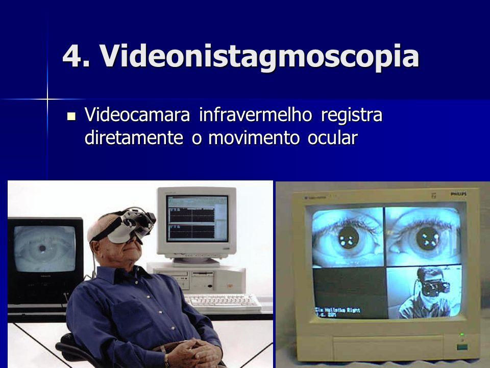 4. Videonistagmoscopia Videocamara infravermelho registra diretamente o movimento ocular