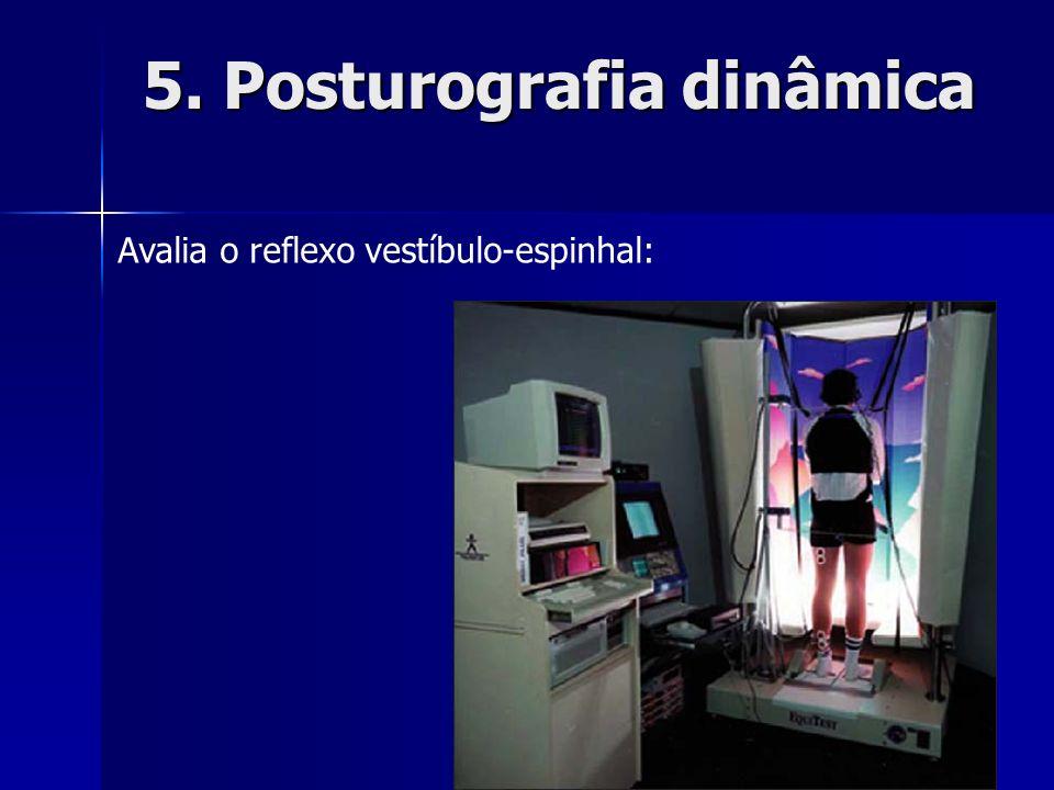 5. Posturografia dinâmica