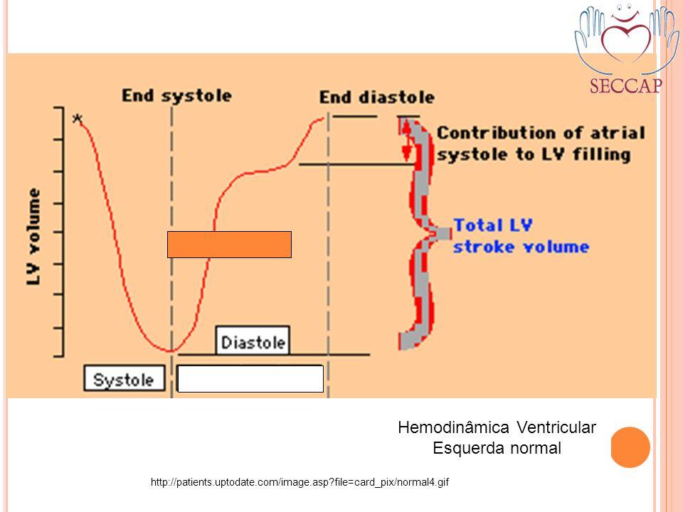 Hemodinâmica Ventricular