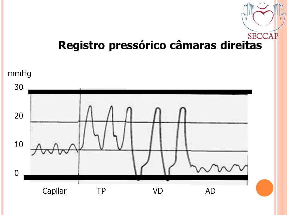 Registro pressórico câmaras direitas