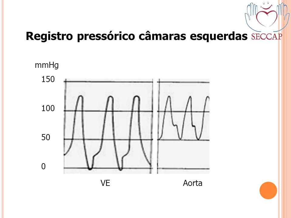 Registro pressórico câmaras esquerdas