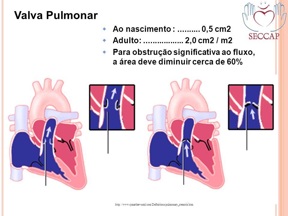 Valva Pulmonar Ao nascimento : .......... 0,5 cm2