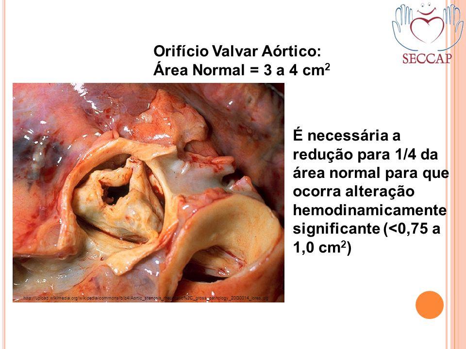 Orifício Valvar Aórtico: Área Normal = 3 a 4 cm2