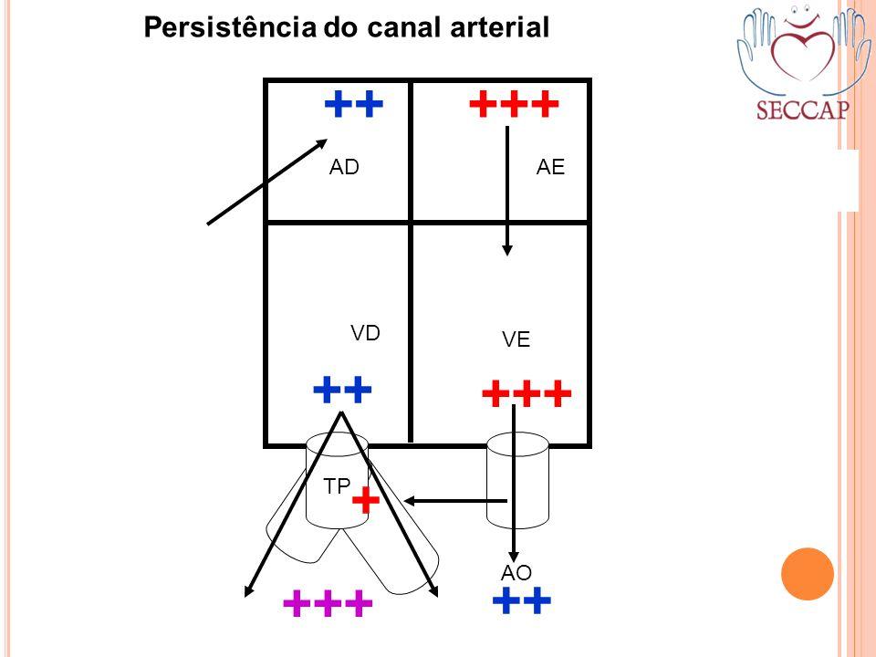 ++ +++ ++ +++ + +++ ++ Persistência do canal arterial AD AE VD VE TP