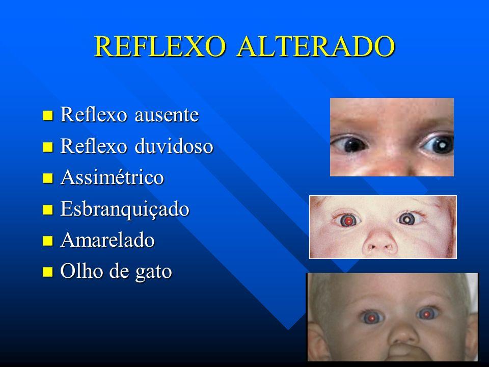 REFLEXO ALTERADO Reflexo ausente Reflexo duvidoso Assimétrico