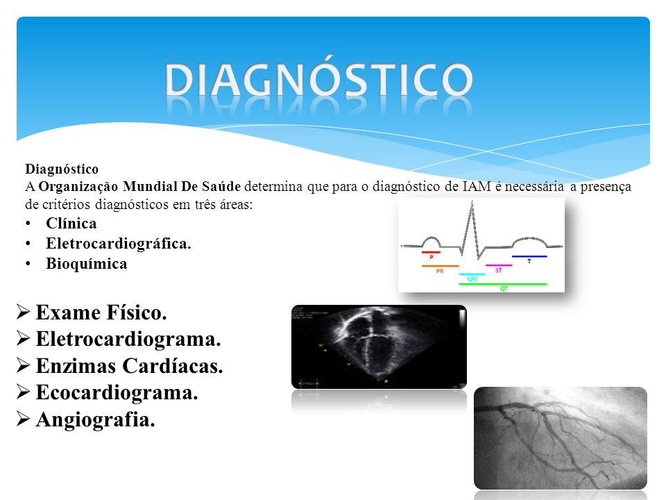 Exame angiografia