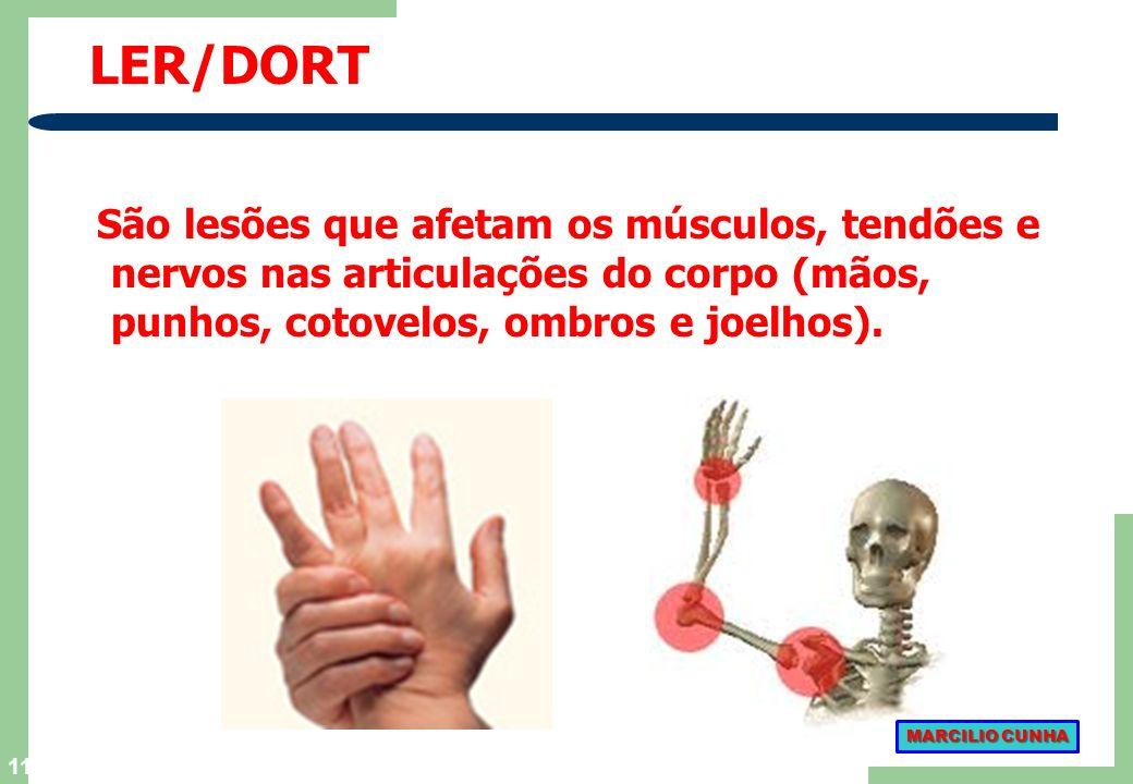 LER/DORTSão lesões que afetam os músculos, tendões e nervos nas articulações do corpo (mãos, punhos, cotovelos, ombros e joelhos).