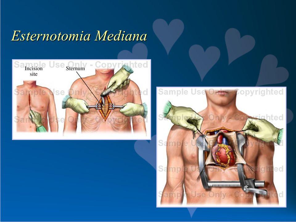 Esternotomia Mediana