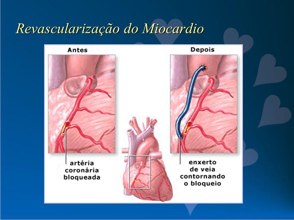 Revascularização do Miocardio