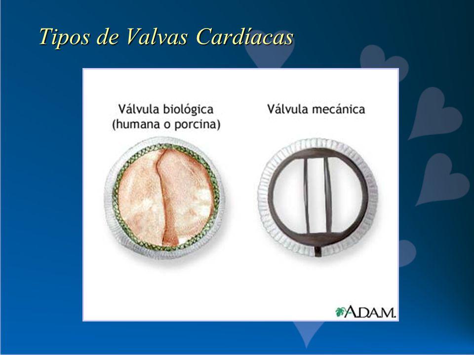 Tipos de Valvas Cardíacas