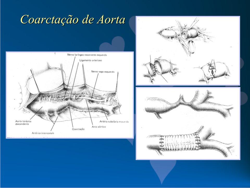 Coarctação de Aorta