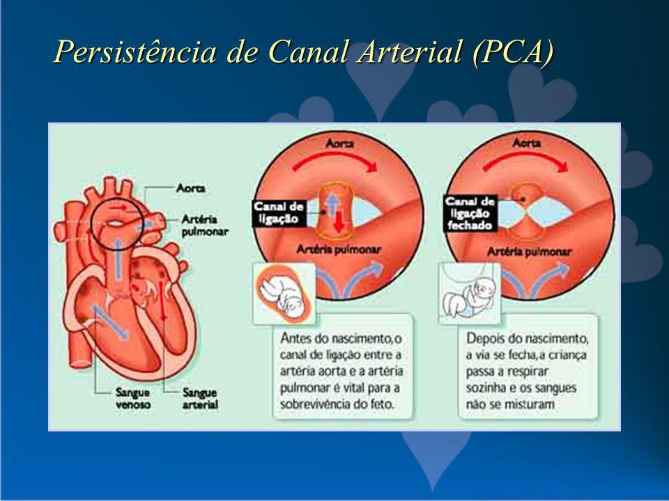 Persistência de Canal Arterial (PCA)