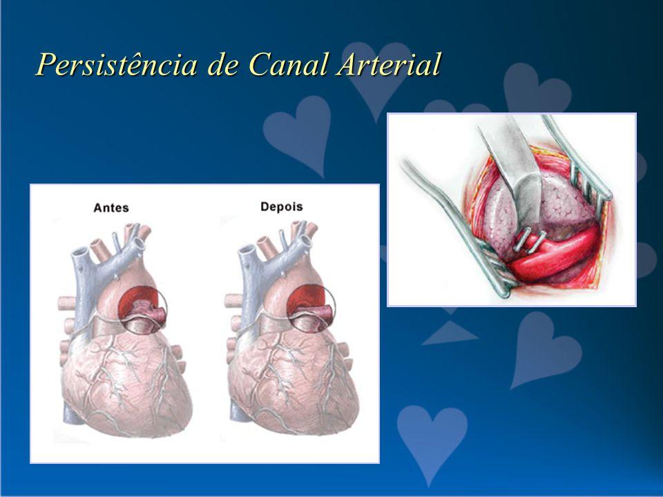 Persistência de Canal Arterial