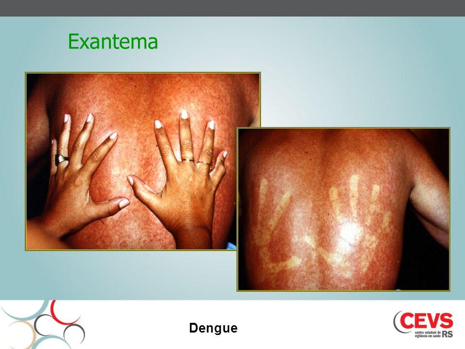 Exantema Dengue