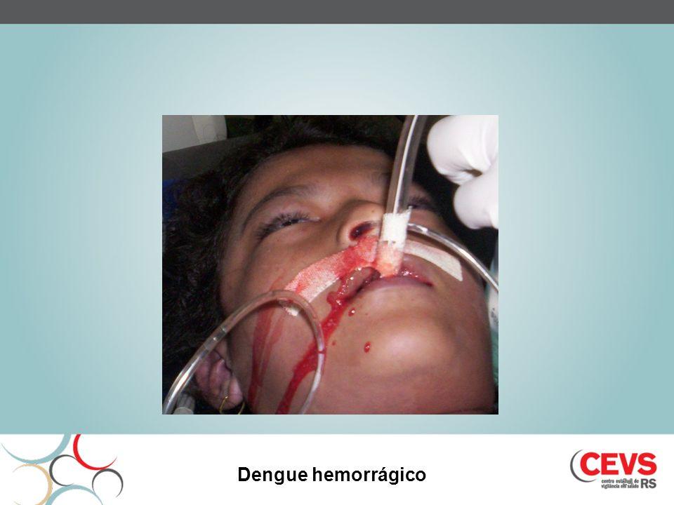 Dengue hemorrágico 24