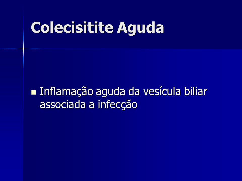 Colecisitite Aguda Inflamação aguda da vesícula biliar associada a infecção