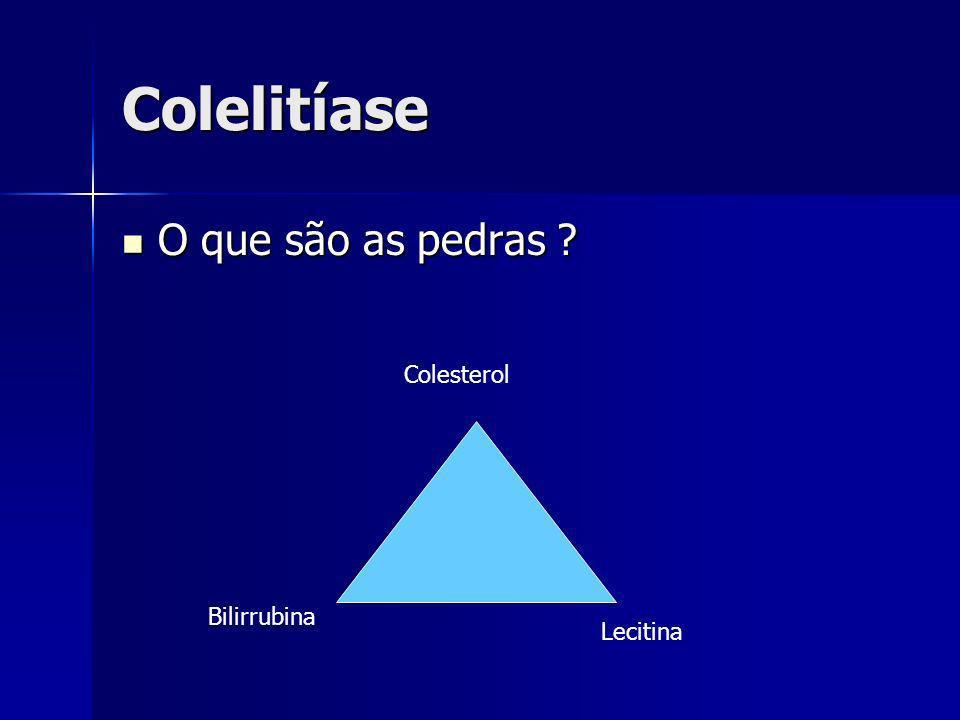 Colelitíase O que são as pedras Colesterol Bilirrubina Lecitina