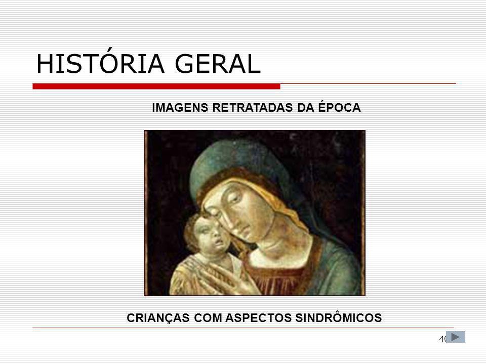 IMAGENS RETRATADAS DA ÉPOCA CRIANÇAS COM ASPECTOS SINDRÔMICOS
