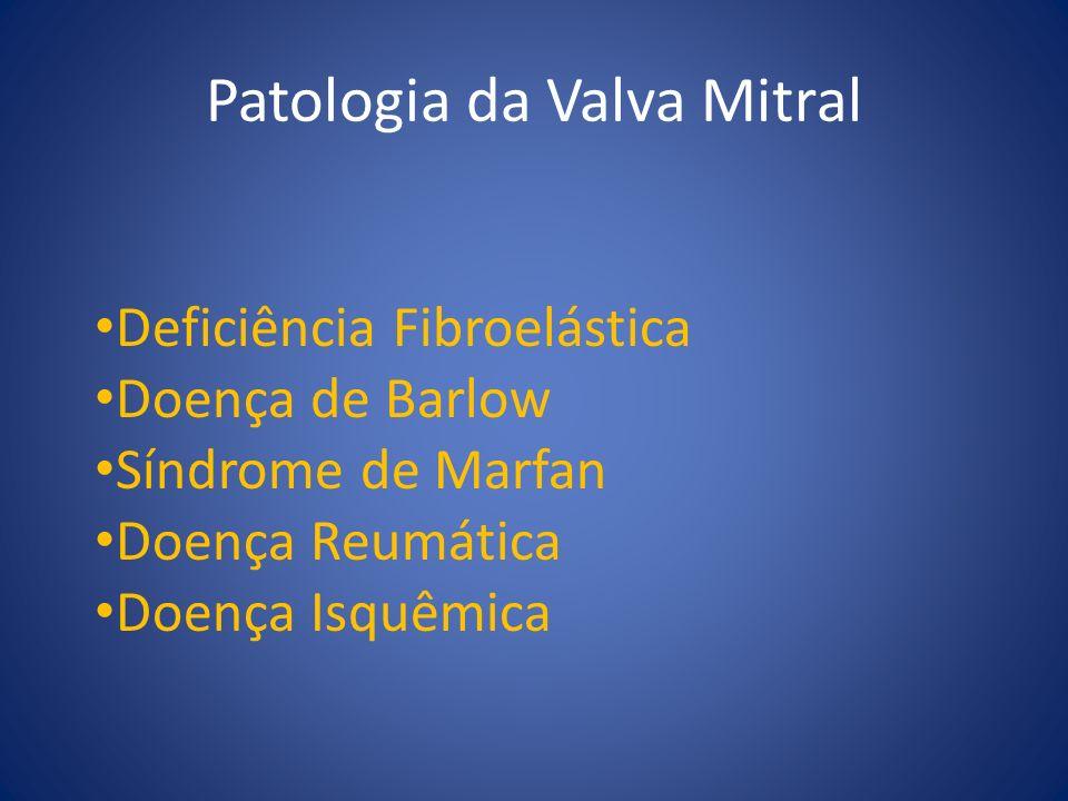 Patologia da Valva Mitral