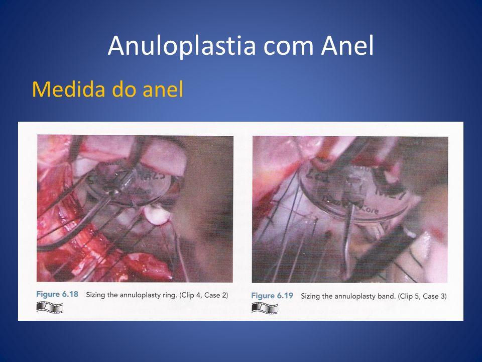 Anuloplastia com Anel Medida do anel