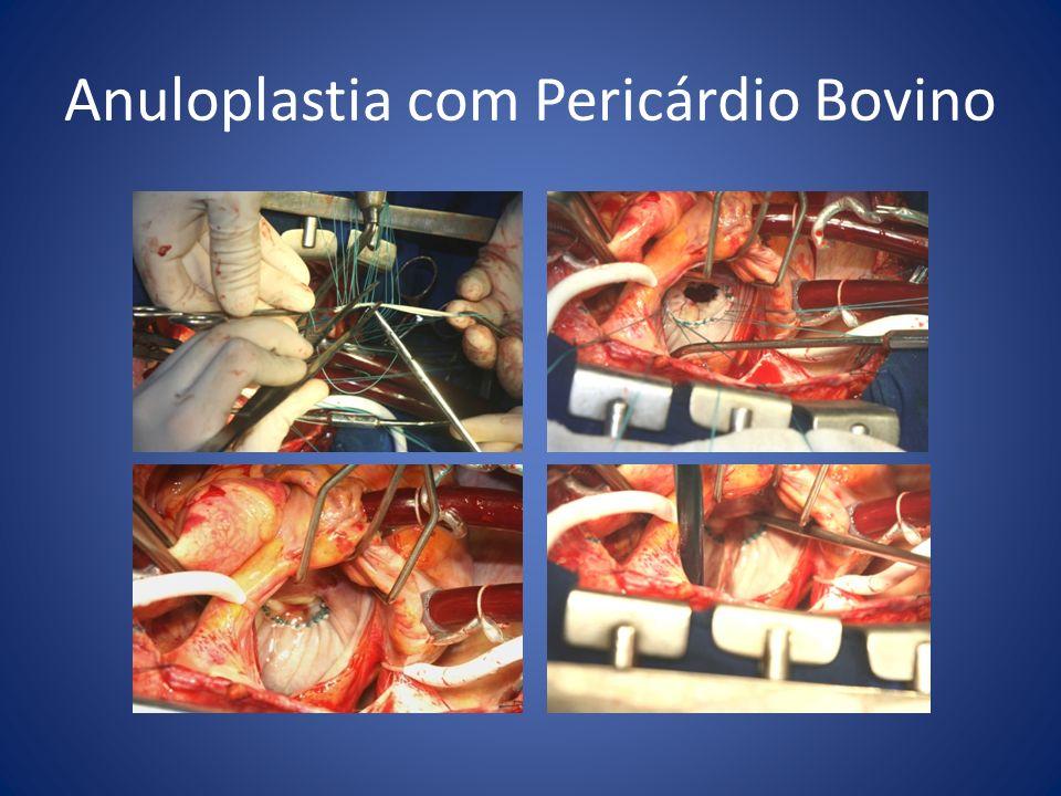 Anuloplastia com Pericárdio Bovino