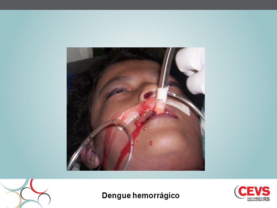 Dengue hemorrágico 18