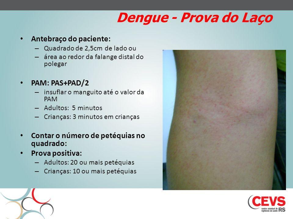 Dengue - Prova do Laço Antebraço do paciente: PAM: PAS+PAD/2