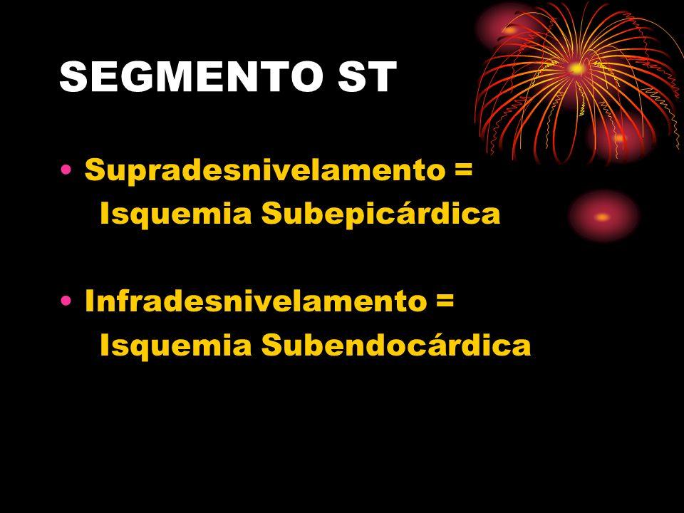 SEGMENTO ST Supradesnivelamento = Isquemia Subepicárdica