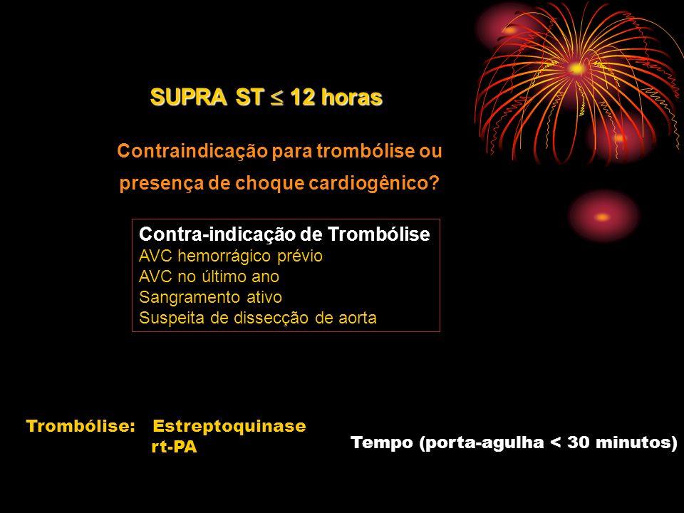 Contraindicação para trombólise ou presença de choque cardiogênico