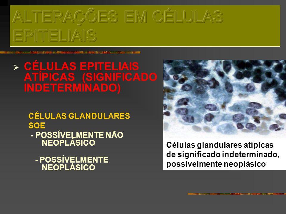 ALTERAÇÕES EM CÉLULAS EPITELIAIS