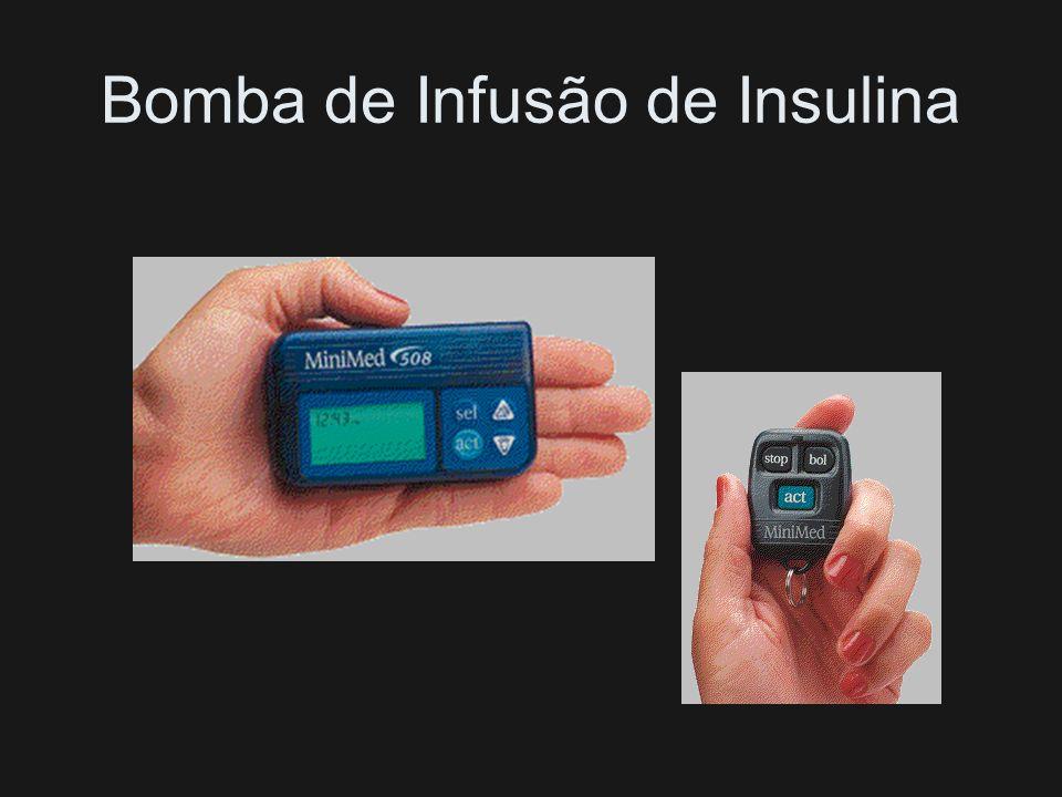Bomba de Infusão de Insulina