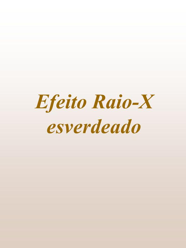 Efeito Raio-X esverdeado