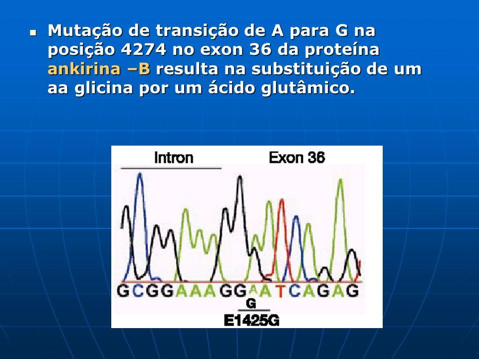 Mutação de transição de A para G na posição 4274 no exon 36 da proteína ankirina –B resulta na substituição de um aa glicina por um ácido glutâmico.