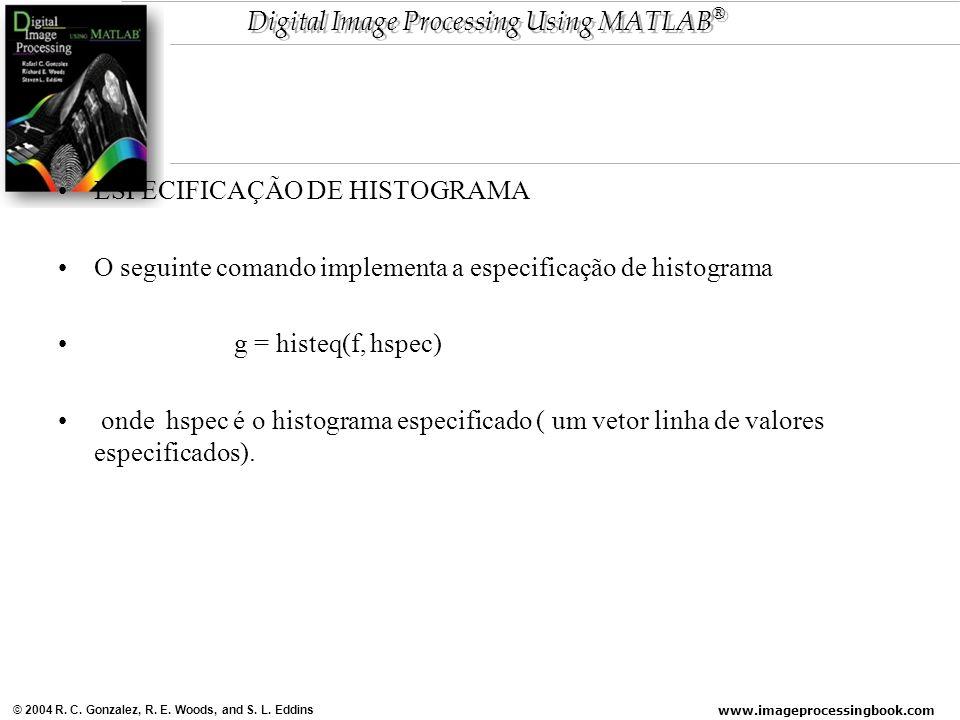 ESPECIFICAÇÃO DE HISTOGRAMA