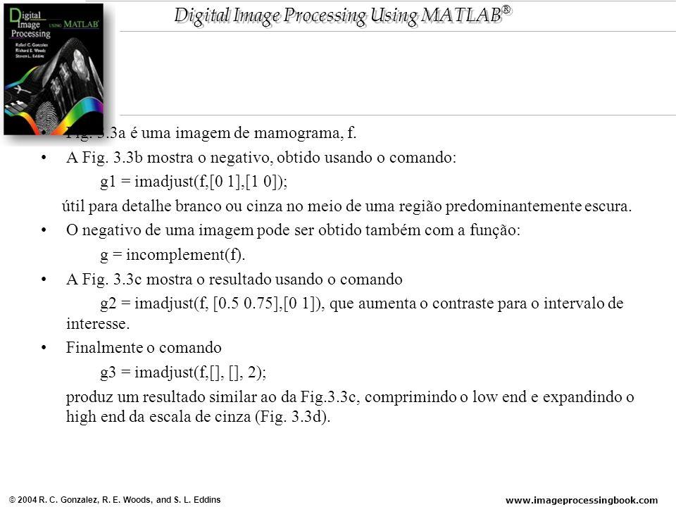 Fig. 3.3a é uma imagem de mamograma, f.