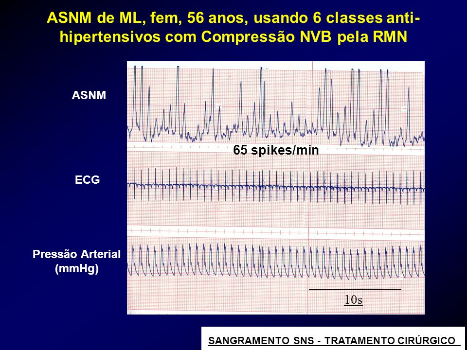 ASNM de ML, fem, 56 anos, usando 6 classes anti-hipertensivos com Compressão NVB pela RMN