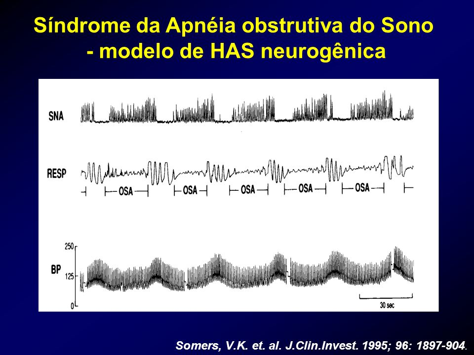 Síndrome da Apnéia obstrutiva do Sono - modelo de HAS neurogênica