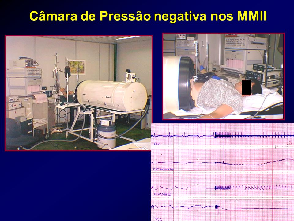 Câmara de Pressão negativa nos MMII