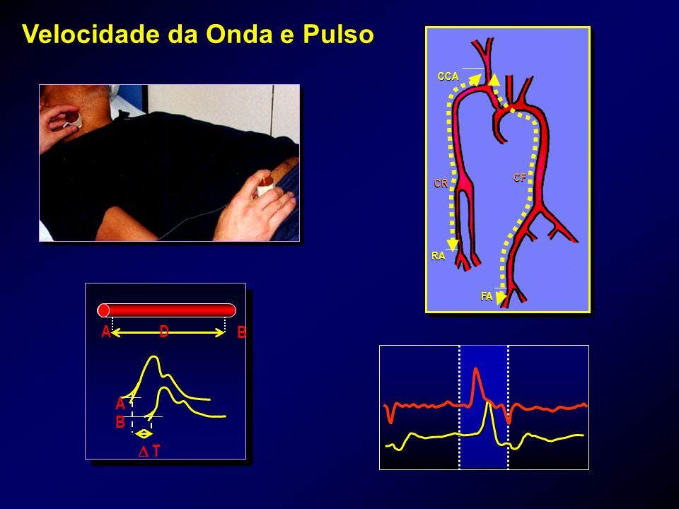 Velocidade da Onda e Pulso