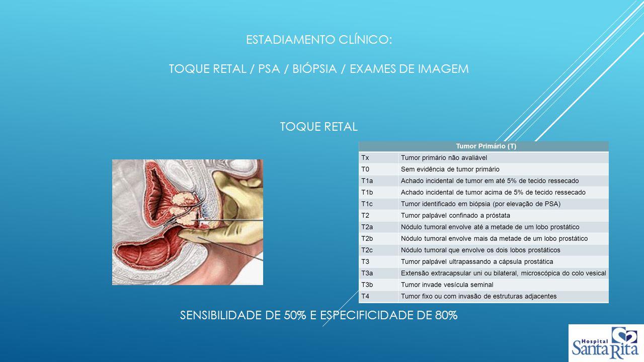 Estadiamento clínico: toque retal / psa / biópsia / exames de imagem Toque retal sensibilidade de 50% e especificidade de 80%