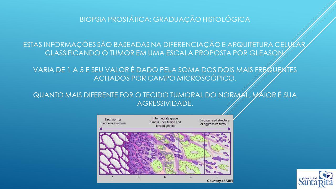 Biopsia prostática: graduação histológica Estas informações são baseadas na diferenciação e arquitetura celular, classificando o tumor em uma escala proposta por gleason; varia de 1 a 5 e seu valor é dado pela soma dos dois mais frequentes achados por campo microscópico.