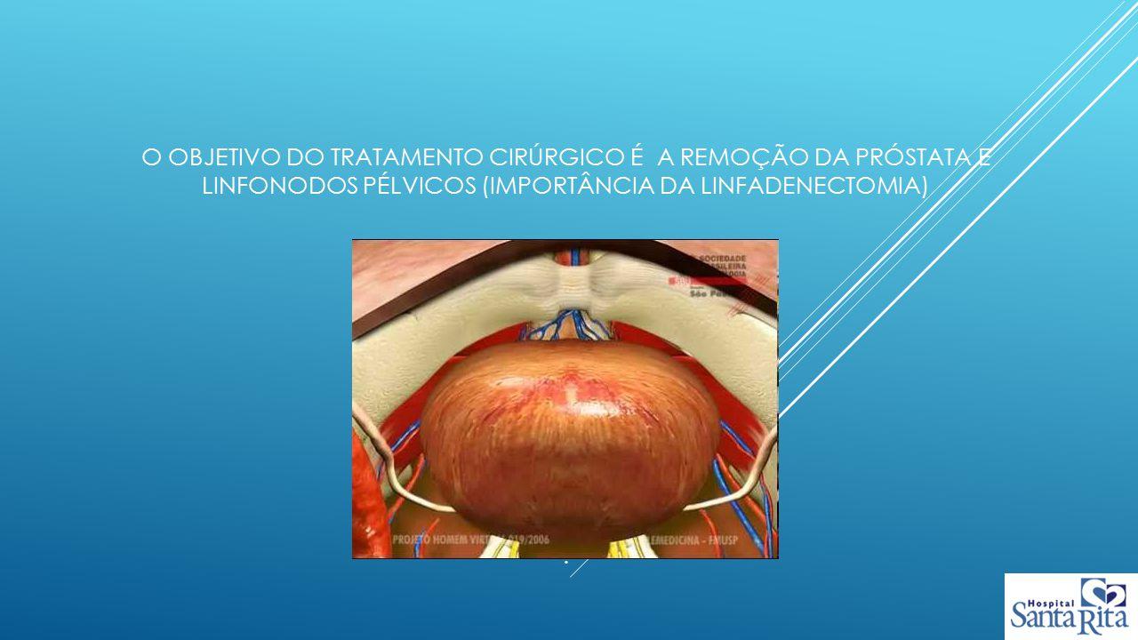 O objetivo do tratamento cirúrgico é a remoção da próstata e linfonodos pélvicos (importância da linfadenectomia) .