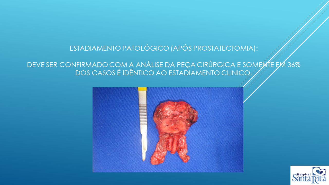 Estadiamento patológico (após prostatectomia): deve ser confirmado com a análise da peça cirúrgica e somente em 36% dos casos é idêntico ao estadiamento clinico.