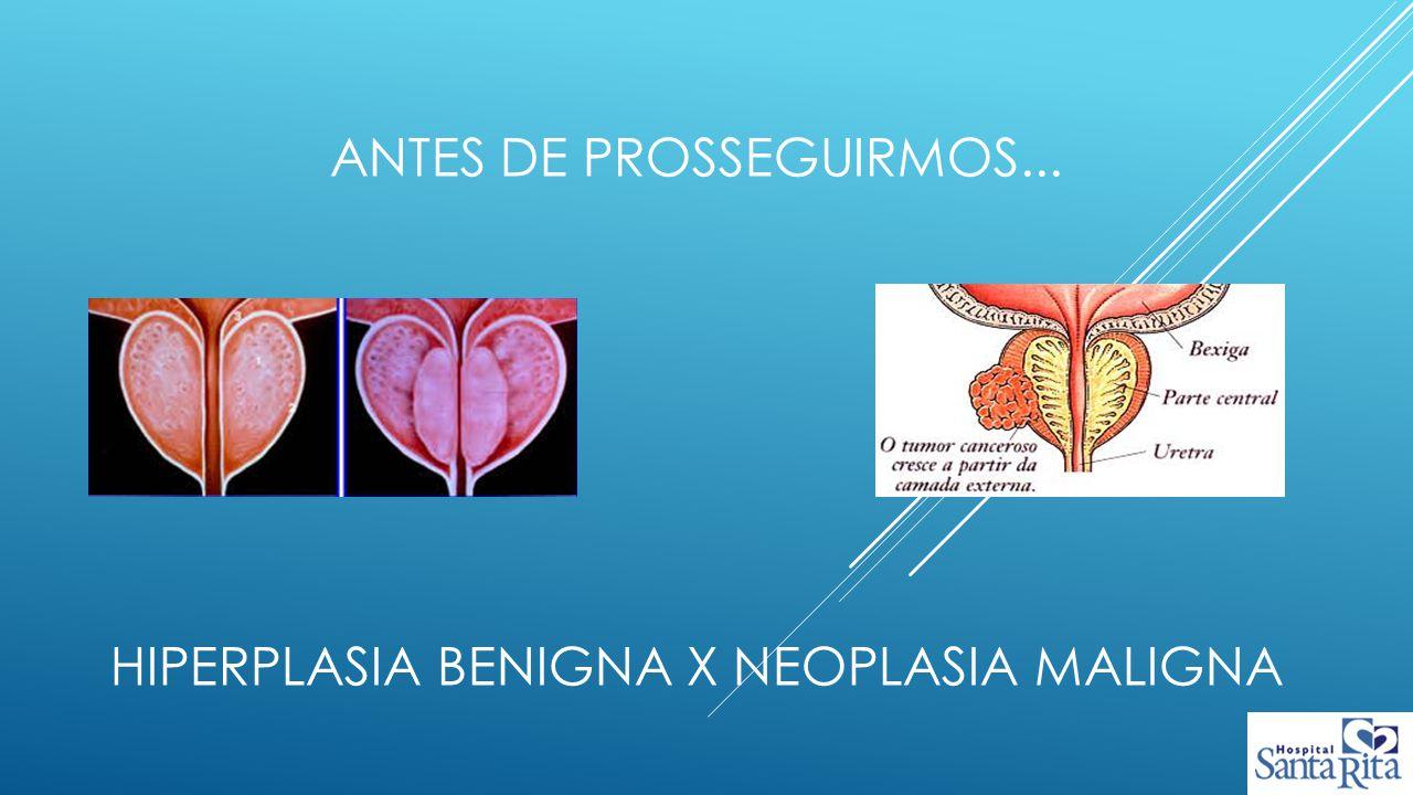 Antes de prosseguirmos... Hiperplasia benigna x neoplasia maligna