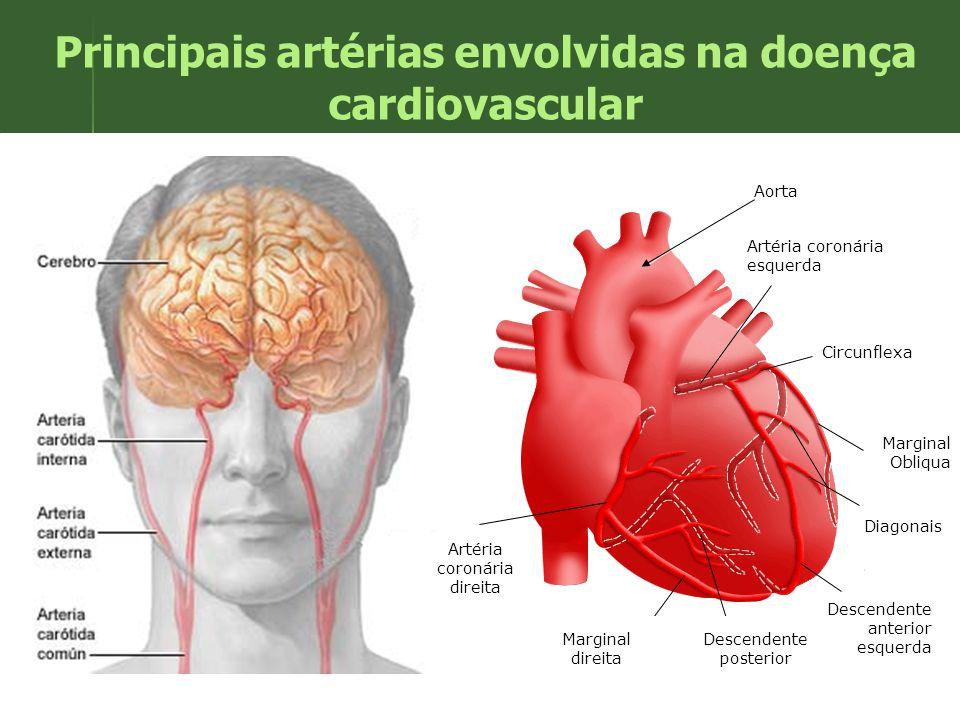 Principais artérias envolvidas na doença cardiovascular