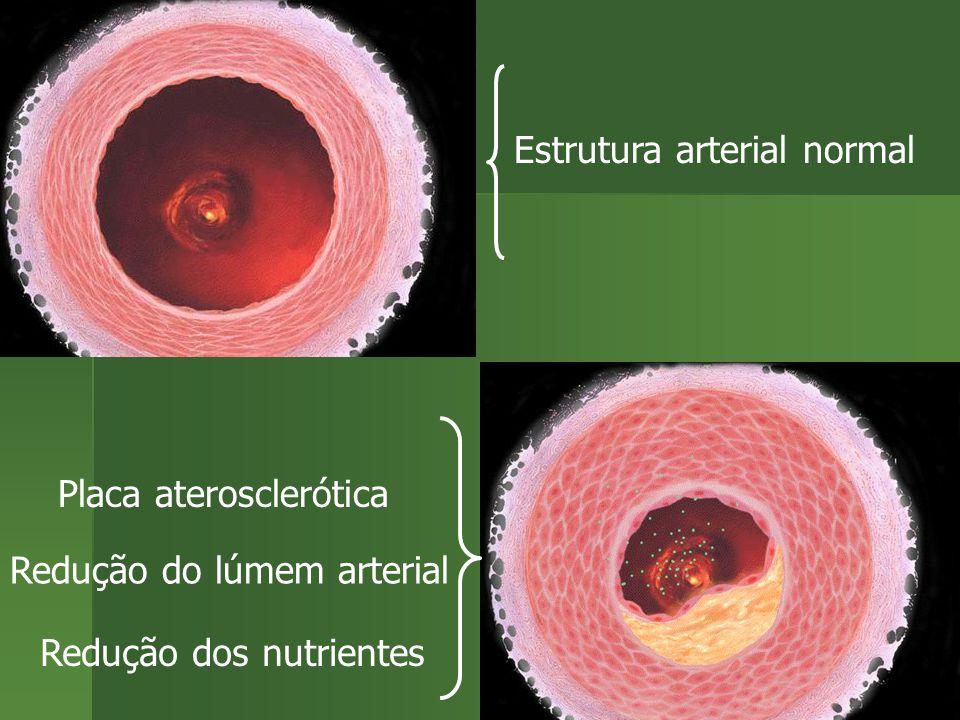 Estrutura arterial normal