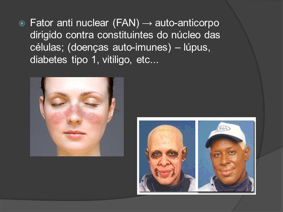 Fator anti nuclear (FAN) → auto-anticorpo dirigido contra constituintes do núcleo das células; (doenças auto-imunes) – lúpus, diabetes tipo 1, vitiligo, etc...